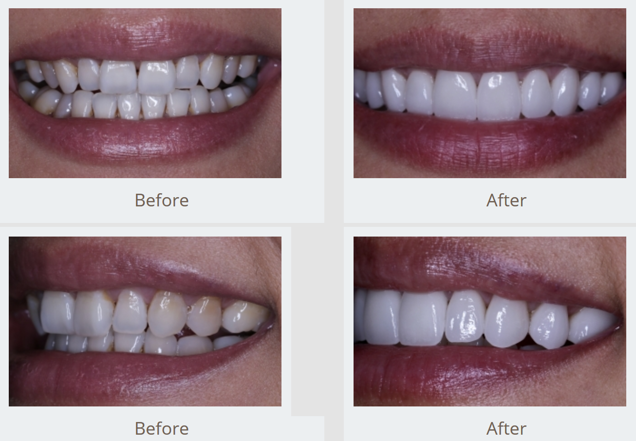 NYC Smile Design - Before & After Gallery Sample