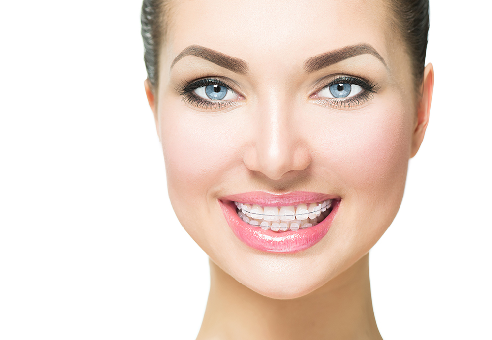 Cermaic Braces NYC | Clear Orthodontic Treatment