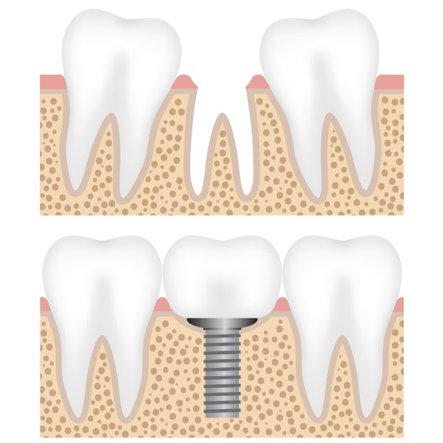 Dental implants can last a lifetime. To learn more, call 212-452-3344 and schedule a consultation with our NYC implant dentists today.