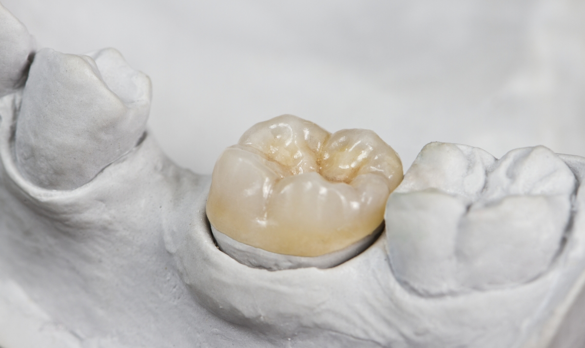 New York Porcelain Dental Crown | NYC Smile Design