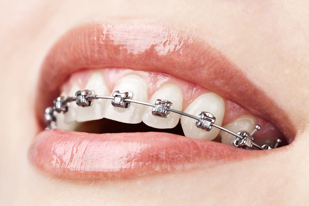 Clsoeup of woman smiling with braces