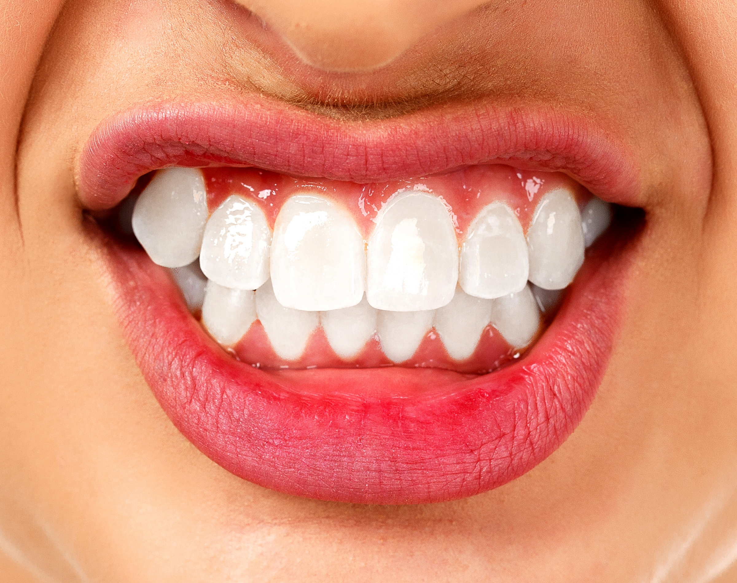 Bruxism Treatment in Manhattan