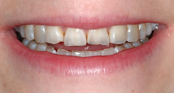 Acid erosion damage to front teeth - NYC Smile Design