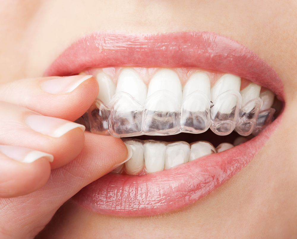 Woman placing Invisalign aligners on teeth