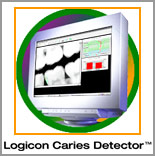 Logicon cavity detection - NYC Smile Design