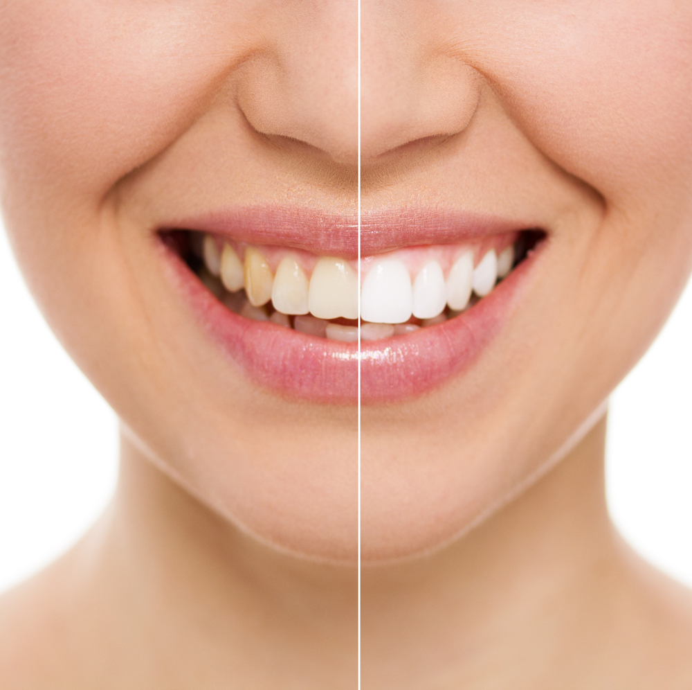 Teeth Whiteing Before & After | NYC Smile Design