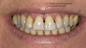 NYC Smile Design - BLOG - Dark Black Triangles And Long On ...