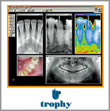Digital X-Rays - NYC Smile Design